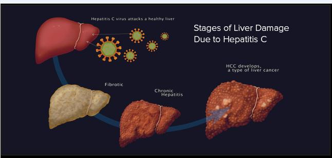Wereld Hepatitus Dag